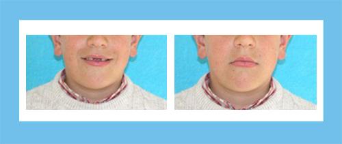 Ortodoncia Encinas Caso 3