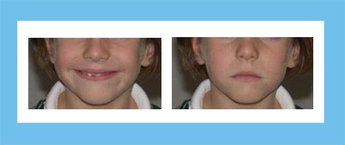 Ortodoncia Encinas Caso 6