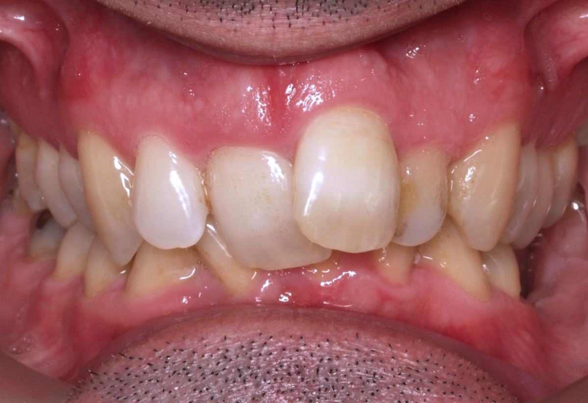 Ortodontia invisível antes