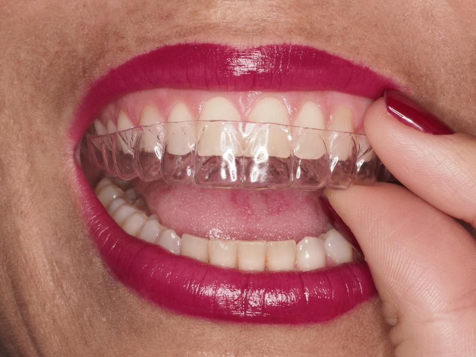 Ortodoncia Invisible uso