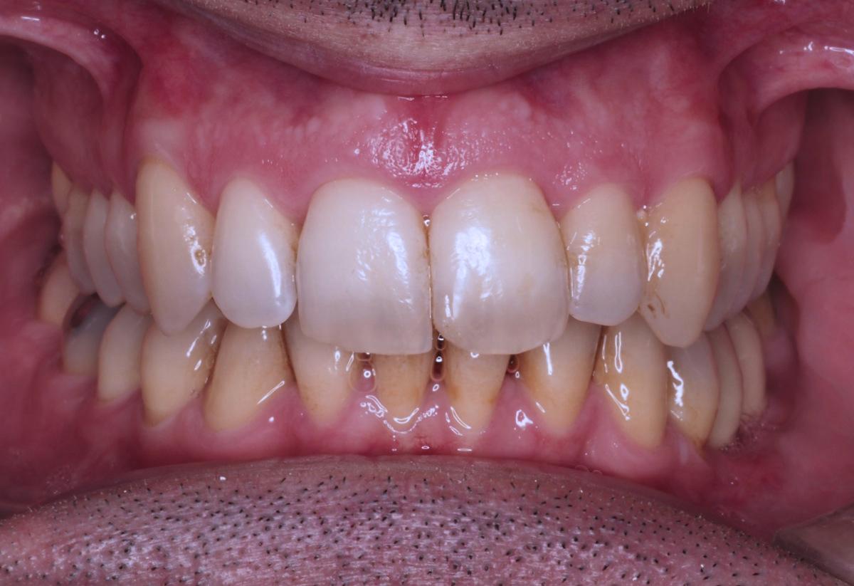 Ortodontia invisível depois