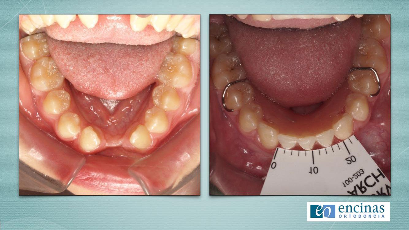 Caso Clínico de Ortodoncia Encinas en el Congreso de la Sedo