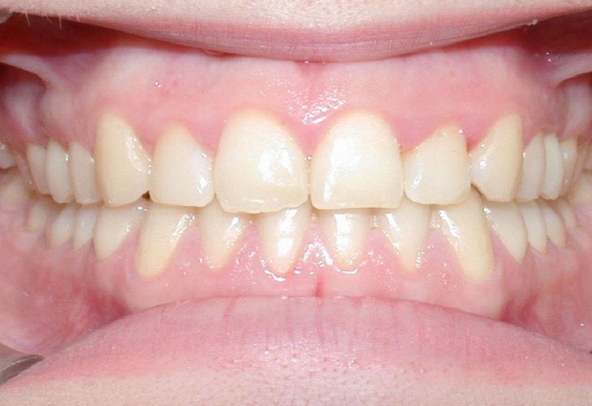 los-primeros-dias-de-ortodoncia