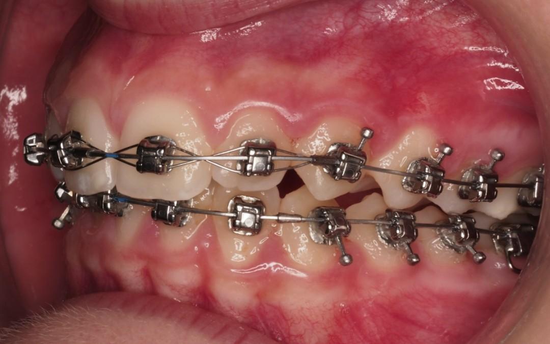 2-Foto intraoral izquierda